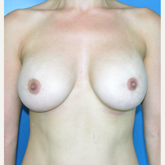 35-44 year old woman treated with Breast Augmentation after 3748083