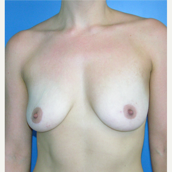 35-44 year old woman treated with Breast Augmentation before 3748083