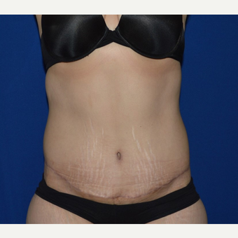 45-54 year old woman treated with No-Drain Tummy Tuck after 3655753