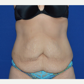 45-54 year old woman treated with No-Drain Tummy Tuck before 3655753