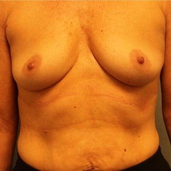 45-54 year old woman treated with Breast Implants before 2565245