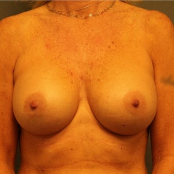 45-54 year old woman treated with Breast Implants after 2565245