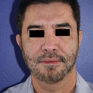 46 year old man treated with Chin Implant after 3710604