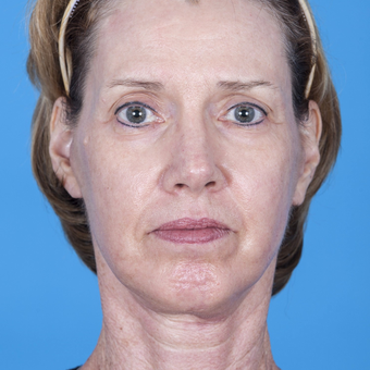 45-54 year old woman treated with Laser Surgery consisting of deep plane facelift and CO2 laser