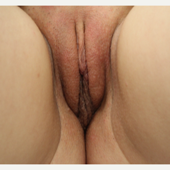 25-34 year old woman treated with Labiaplasty after 3691666