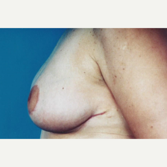 35-44 year old woman treated with Breast Reduction after 3629423