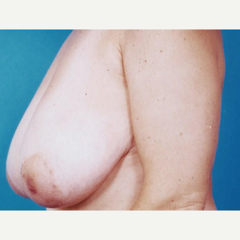 35-44 year old woman treated with Breast Reduction before 3629423