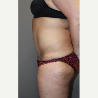 35-44 year old woman treated with Tummy Tuck after 3140828