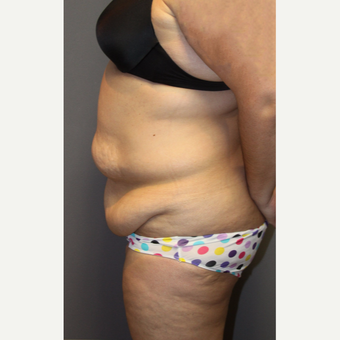 35-44 year old woman treated with Tummy Tuck before 3140828