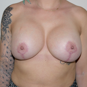 25-34 year old woman treated with Breast Implant Revision before 3132277