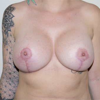 25-34 year old woman treated with Breast Implant Revision after 3132277