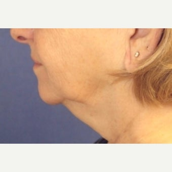 62 year old woman treated with a facelift with submental liposuction before 2621994