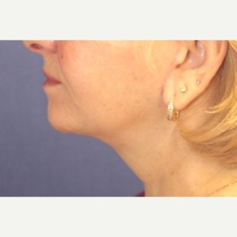 62 year old woman treated with a facelift with submental liposuction after 2621994