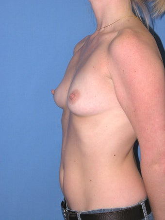 29 year old with breast augmentation 1166239