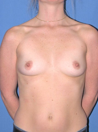 29 year old with breast augmentation before 1166239