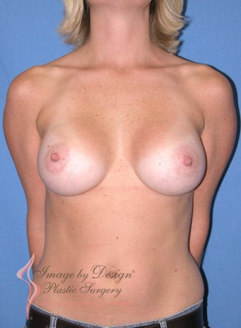 29 year old with breast augmentation after 1166239