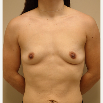 25-34 year old woman treated with Breast Augmentation before 3813775