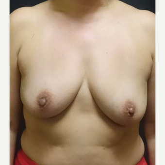35-44 year old woman treated with Breast Implants before 3457917