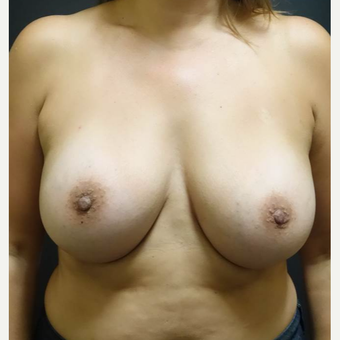35-44 year old woman treated with Breast Implants after 3457917
