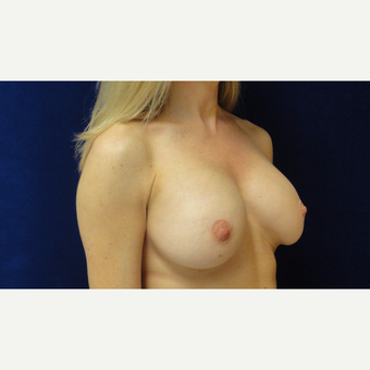 35-44 year old woman treated with Breast Augmentation after 3711716