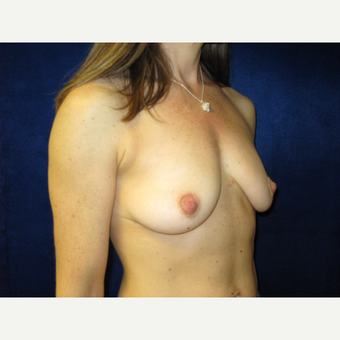 35-44 year old woman treated with Breast Augmentation before 3711716