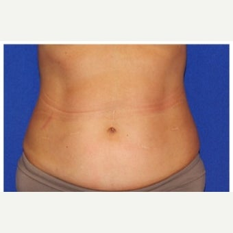 35-44 year old woman treated with Velashape after 2585817