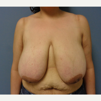 35-44 year old woman treated with Breast Reduction before 3493284