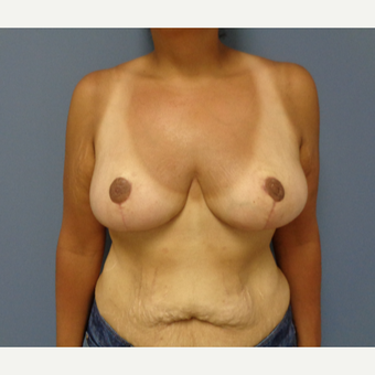 35-44 year old woman treated with Breast Reduction after 3493284