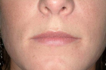 25-34 year old woman treated with Lip Implants before 1651458