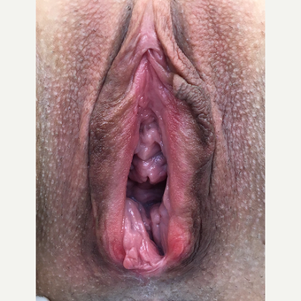 35-44 year old woman treated with Vaginal Rejuvenation before 3628454