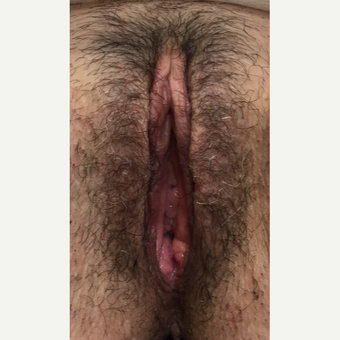 35-44 year old woman treated with Vaginal Rejuvenation after 3628454
