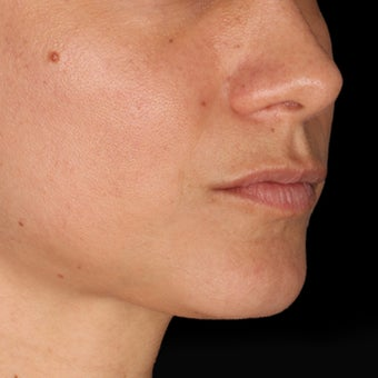 34 Year Old Female Treated for Lip Augmentation and  Nasolabial folds 1367261