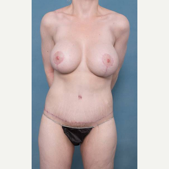 25-34 year old woman treated with Body Lift after 3421126