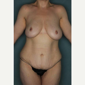 25-34 year old woman treated with Body Lift before 3421126