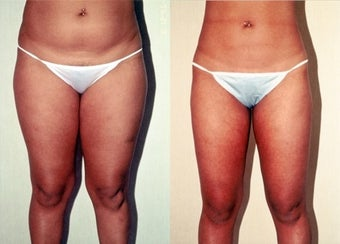 26-year-old woman treated with Liposuction. before 3287390
