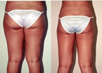 26-year-old woman treated with Liposuction. after 3287390