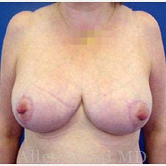 55-64 year old woman treated with Breast Reduction after 2281277