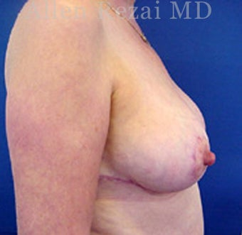 55-64 year old woman treated with Breast Reduction 2281277