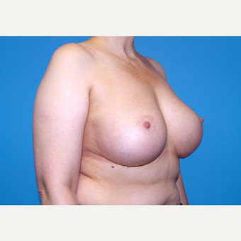 45-54 year old woman treated with Breast Implants after 3440087