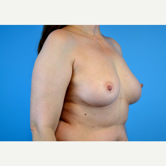 45-54 year old woman treated with Breast Implants before 3440087