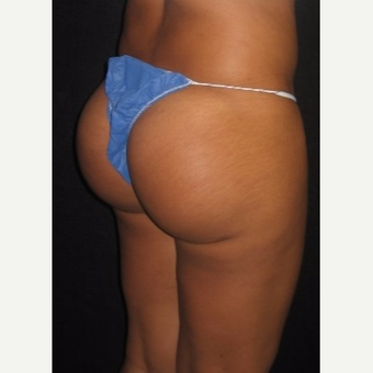 25-34 year old woman treated with Brazilian Butt Lift after 3064635