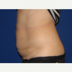 45-54 year old woman treated with Liposuction after 3163320