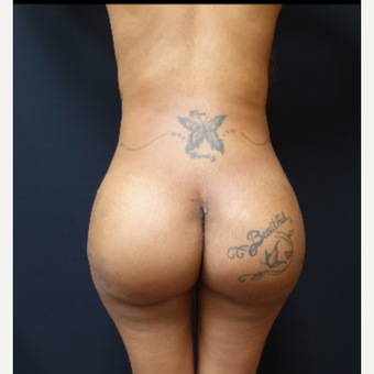 25-34 year old woman treated with Fat Transfer and Butt Implants for her Butt Lift after 3129327