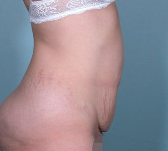 No Drain Tummy Tuck 1339894