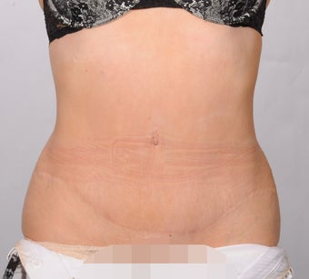 No Drain Tummy Tuck after 1339894