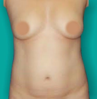 25-34 year old woman treated with Mommy Makeover before 3242144