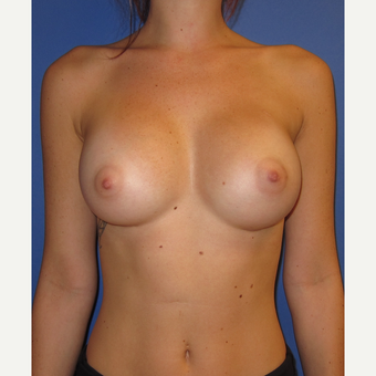 18-24 year old woman treated with Inspira Breast Implants (375cc) after 3374569