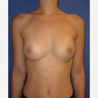 18-24 year old woman treated with Inspira Breast Implants (375cc) before 3374569