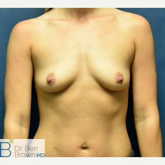 25-34 year old woman treated with Breast Augmentation before 3486942