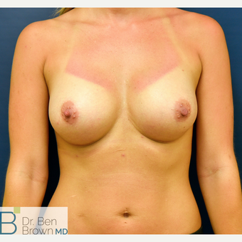 25-34 year old woman treated with Breast Augmentation after 3486942